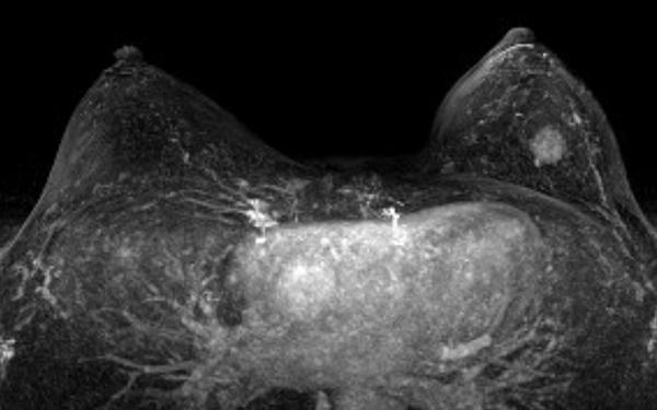 IRM-mammaire