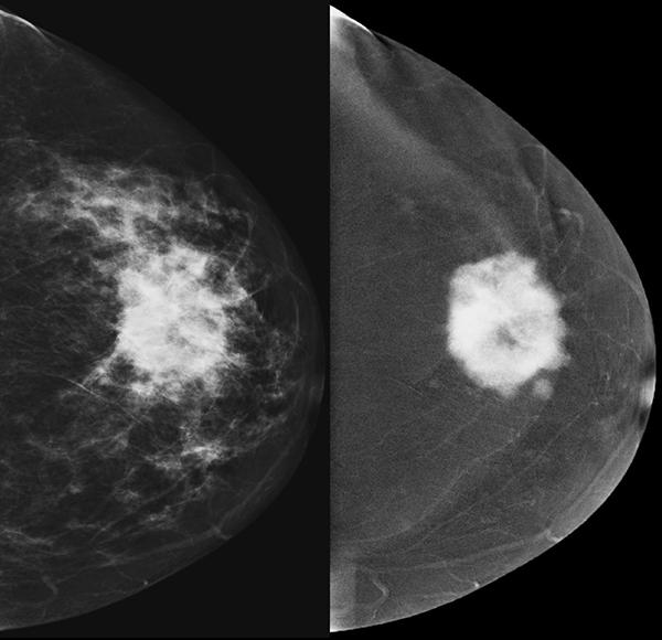angio-mammographie