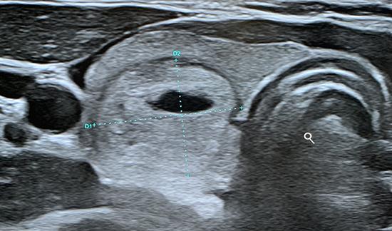Échographie thyroïdienne
