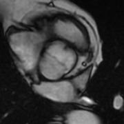 Valve aortique bicuspide fermée